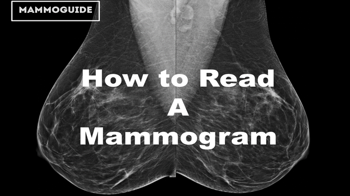 What does a normal breast mammogram look like